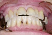 Step1/術前・唇側面観