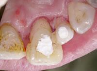 Step4/超音波スケーラーにて歯石の除去後